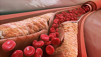 Low-density lipoprotein - LDL causes the progression of atherosclerosis and blocks the artery lumen.