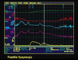 Urodynamic testing - Urodynamic trace of detrusor sphincter dyssynergia.