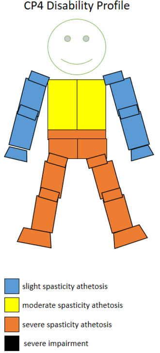 T34 (classification) - The spasticity athetosis level and location of a CP4 sportsperson.