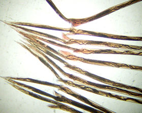 CSIRO ScienceImage 10819 The tail ends of 11 Haemonchus contortus barbers pole worm adult females The worms are all taken from one sheep infected with a single strain of this worm species.jpg
