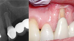 Combined periodontic-endodontic lesions - An example of a combined perio-endo lesion.  There is almost complete loss of bone on the facial surface of the canine root and the periodontal pocket is contiguous with the periapical lesion, as demonstrated by the gutta percha point that reaches the lesion when placed into the gingival sulcus.