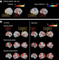 Figure 5.Brain regions show significantly greater connectivity in the high compared with the low hypnotizable groups during hypnosis.png