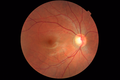Fundus photograph of a healthy right eye (OD) from a myopic female Asian patient. Age 22.png