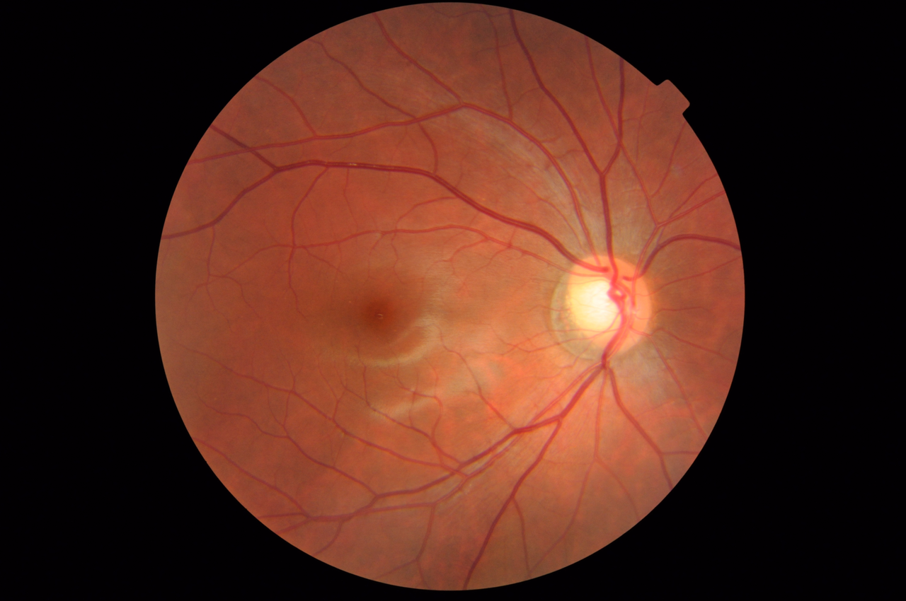 File Fundus Photograph Of A Healthy Right Eye  Od  From A Myopic Female Asian Patient  Age 22