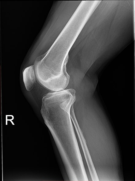 Plain radiograph of the right knee Knee plain X-ray.jpg