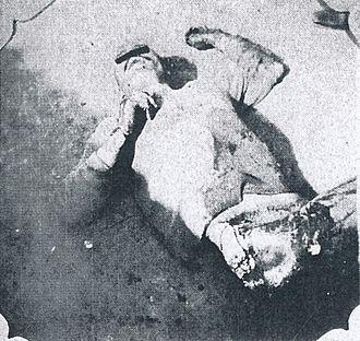 Tungchow mutiny - Image: Massacred corpse of a Japanese victim of the Tungchow Massacre