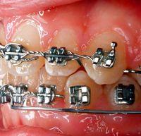 Кто придумал брекеты — Болезни полости рта