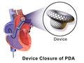 Patent Ductus Arteriosus (Device Closure).png