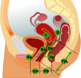 Pelvic Organ Prolapse Quantification System.svg