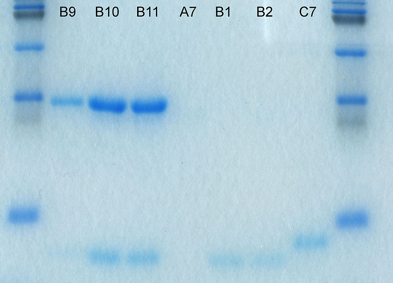File:Sds-page electrophoresis.jpg