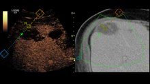 Plik:Volume-Navigation-with-Contrast-Enhanced-Ultrasound-and-Image-Fusion-for-Percutaneous-Interventions-pone.0033956.s001.ogv