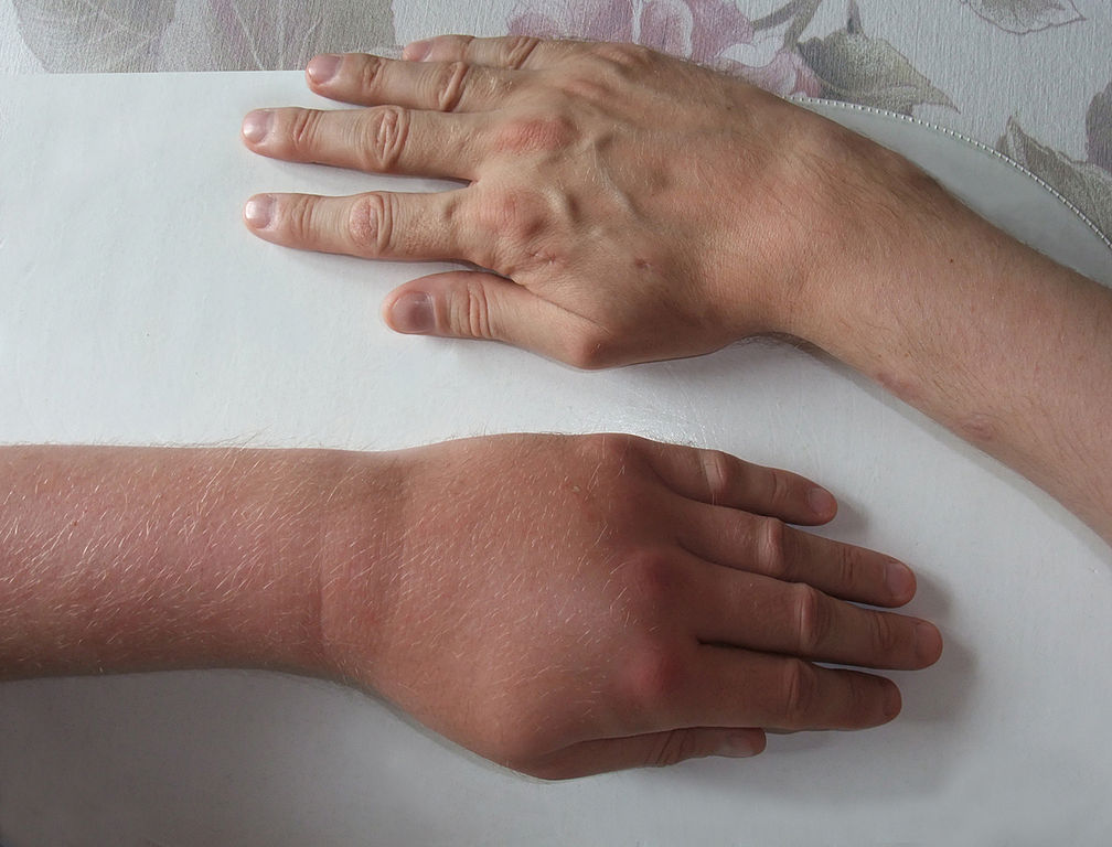 Wespenstich Finger