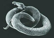 Schistosoma v elektronovém mikroskopu