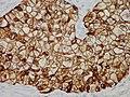 Adenocarcinoma - CK7 immunostain (5762463282).jpg