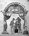 Apollonius of Kitton, dislocated mandible Wellcome L0005762.jpg