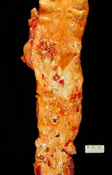 Fil:Atherosclerosis, aorta, gross pathology PHIL 846 lores.jpg