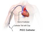 Blausen 0193 Catheter PICC.png
