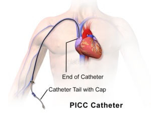 Peripherally inserted central catheter - Illustration of fully inserted PICC