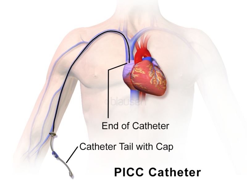 A False Claims Act case related to hearth catheterization has been settled.