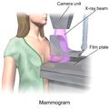 Blausen 0628 Mammogram.png