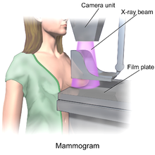 Bitch big boob mamogram galo