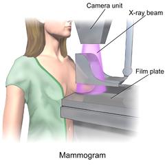Blausen 0628 Mammogram