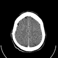 Computed tomography of human brain (25).png