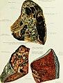 Die Klinik der Tuberkulose - Handbuch der gesamten Tuberkulose für Ärzte und Studierende (1912) (14758610806).jpg