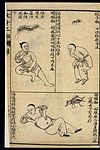 Early C20 Chinese Lithograph; 'Fan' diseases Wellcome L0039485.jpg