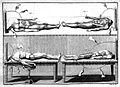 Giovanni Aldini, Essai...sur le galvanisme... Wellcome L0023894.jpg