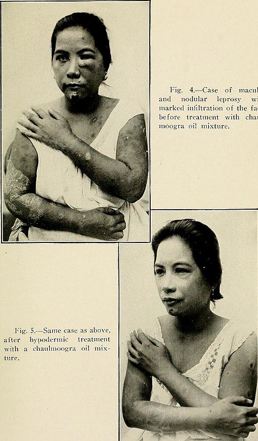 Handbook of medical treatment (1919) (14596226048)