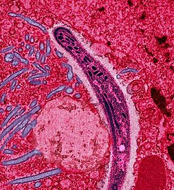 A Plasmodium sporozoite traverses the cytoplasm of a mosquito midgut epithelial cell in this false-color electron micrograph.