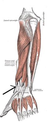 Prosztata fibrózis 5 mm