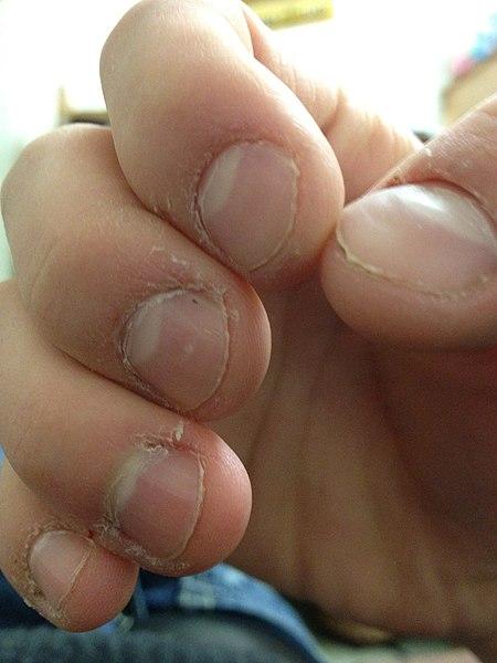 https://upload.wikimedia.org/wikipedia/commons/thumb/f/f1/Nail_and_cuticle_bitting.JPG/450px-Nail_and_cuticle_bitting.JPG