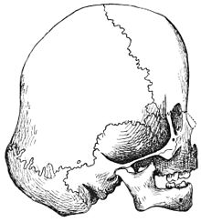 PSM V39 D553 Right lateral aspect of the navajo child skull.jpg