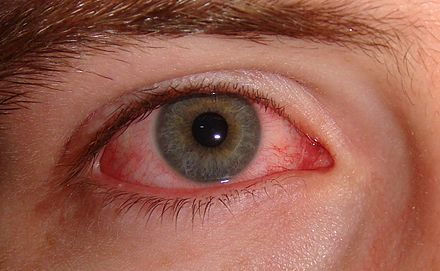 Rote Auge