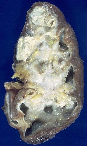 Caseous necrosis - Image: Renal tuberculosis (6539942987)