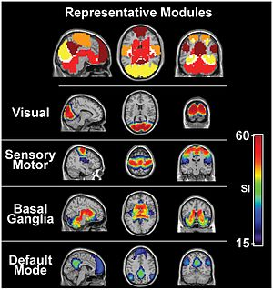 Sensory nervous system - The visual system and the somatosensory system are active even during resting state fMRI
