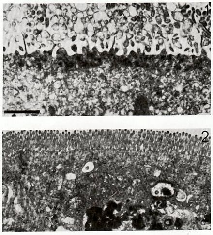 Electron micrograph of a rotavirus infected enterocyte (top) compared to an uninfected cell (bottom). The bar = approx. 500 nm