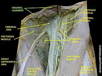 Inguinal ligament - Image: Slide 1GGGGG