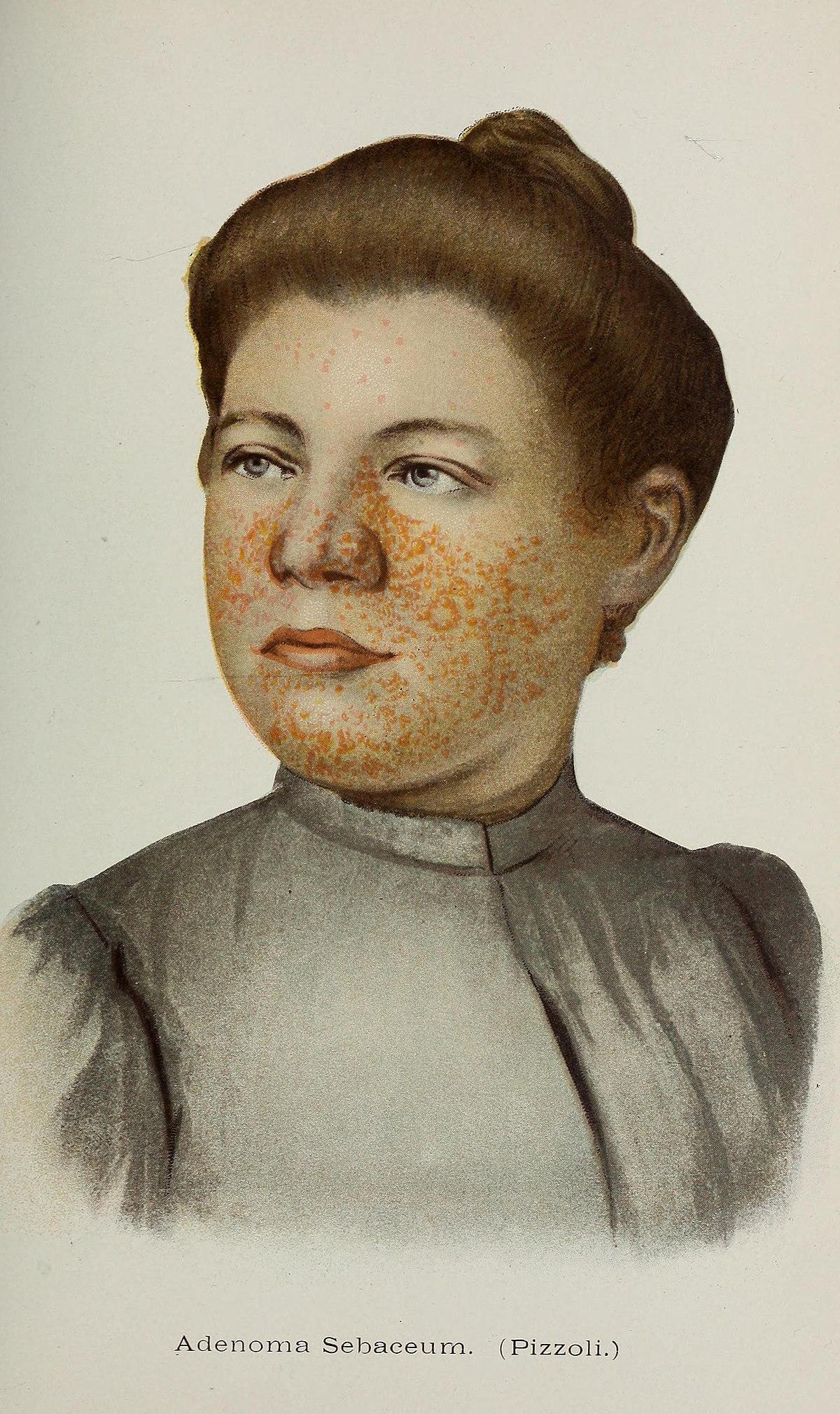 Adenoma Sebaceum Wikipedia