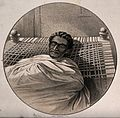 Theodore on his death bed. Lithograph by James Ferguson afte Wellcome V0042454.jpg