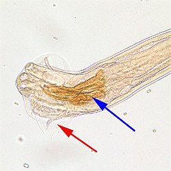 Trichostrongylus male posterior 200x.jpg