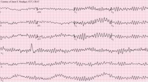 Normal quanto cardiaco batimento e