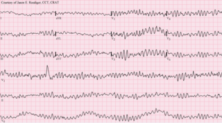 Arrhythmia Group of conditions in which the heartbeat is irregular, too fast, or too slow