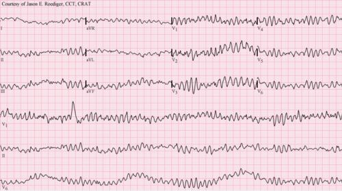 Ventricular fibrillation.png