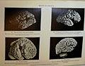 'MENTAL DEFICIENCY' (Amentia), FIFTH EDITION, 1929... IMG 3569 edited-4.jpg
