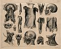 Écorché figures, with details of miscellaneous bones and mus Wellcome V0008469.jpg