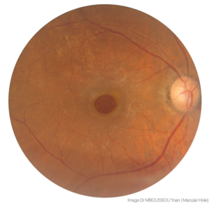 Fundus photography of a Macular hole