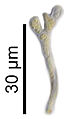 Caloplaca holocarpa 2.jpg